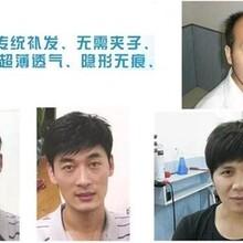 补发非手术植发专业机构武汉馨艺增发效果有保障